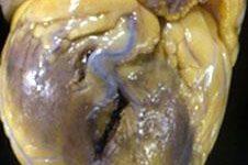 Фотография сердца 43-летнего мужчины, демонстрирующая место колотой раны над боковой свободной стенкой левого желудочка (показана в виде вертикального разрыва).