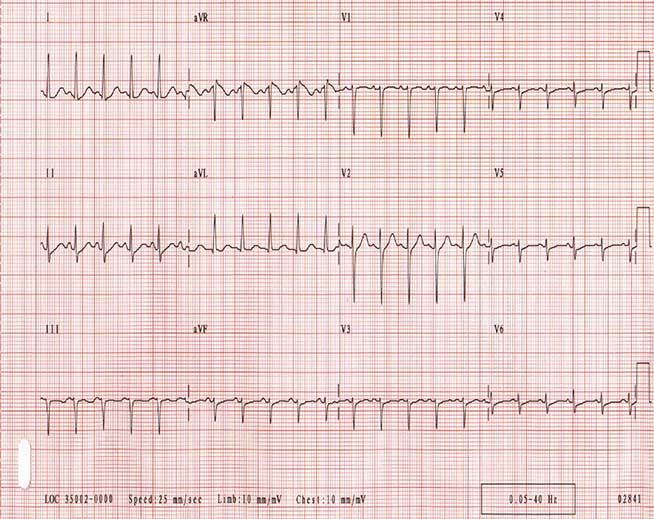 Синусовая тахикардия. Отметим, что комплексы QRS являются узкими и регулярными. Частота сердечных сокращений у пациента составляет приблизительно 135 уд / мин. P-волны являются нормальными в морфологии.