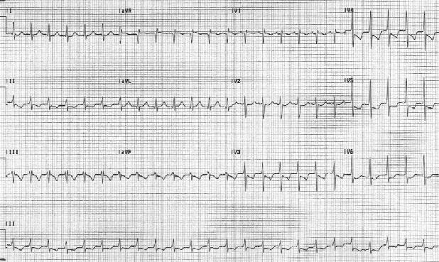 Предсердная тахикардия. Частота сердечных сокращений пациента составляет 151 уд / мин. P-волны вертикальны в отведении V1.