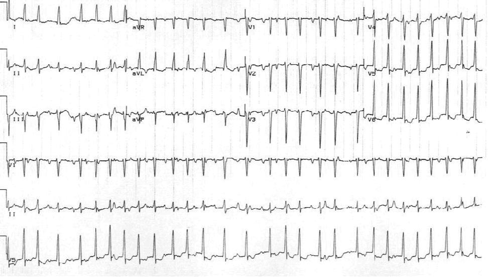 Мультифокальная предсердная тахикардия. Обратите внимание на различные морфологии P-волн и нерегулярно нерегулярную желудочковую реакцию.