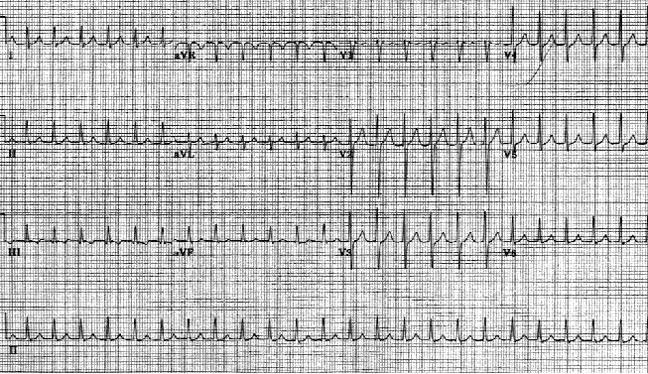 Атриовентрикулярная узловая реентеративная тахикардия. Частота сердечных сокращений пациента составляет приблизительно 146 уд / мин с нормальной осью. Обратите внимание на волны псевдо S в выводах II, III и aVF. Также обратите внимание на псевдо-волны R 'в V1 и aVR. Эти отклонения представляют собой ретроградную активацию предсердий.