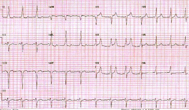 Синдром Вольфа-Паркинсона-Уайта. Обратите внимание на короткий интервал PR и невнятный восходящий удар (дельта-волна) на QRS-комплексы.