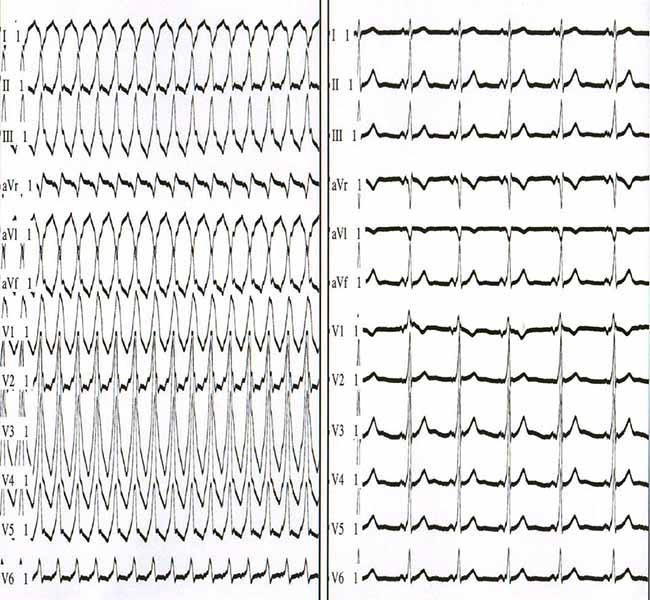 На левой картинке изображена антидромная атриовентрикулярная реентеративная тахикардия. На правой панели изображен синусовый ритм у пациента с антидермической атриовентрикулярной реципрокной тахикардией. Обратите внимание, что комплекс QRS является преувеличением дельта-волны во время синусового ритма.