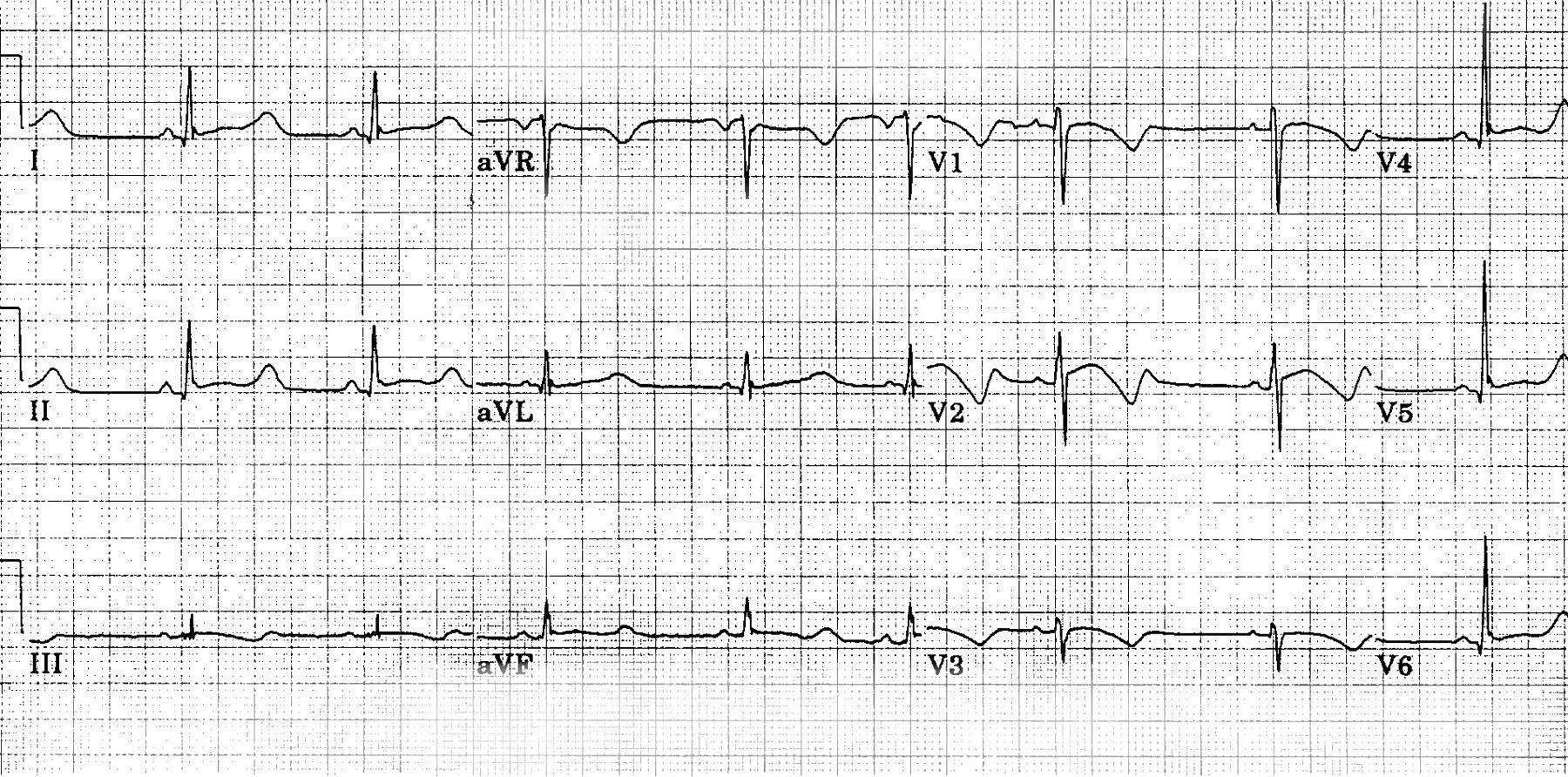 Отмечено продление интервала QT у 15-летнего подростка с синдромом удлиненного QT (R-R = 1,00 с, интервал QT = 0,56 с, интервал QT, скорректированный на частоту сердечных сокращений [QTc] = 0,56 с). Аномальная морфология реполяризации может наблюдаться почти во всех отведениях (т. е. в пиках T-волн, пологого сегмента ST). Брадикардия является общей особенностью у пациентов с данным синдромом.