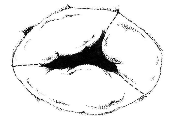 Представление стенотического трикуспидального клапана. Это изображение демонстрирует слияние комиссур (показано пунктирными линиями).