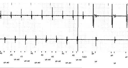 Это типичный пример ПМТ с желудочковой стимуляцией при максимальной скорости слежения (VP-MT), а затем прекращение тахикардии, поскольку предсердное зондирование находится в запрограммированном периоде рефрактерного предвентрикулярного предсердия. Это связано с расширением запрограммированного периода рефрактерного предвентрикулярного предсердия, которое является особенностью этого конкретного кардиостимулятора. Сплошная линия указывает, где обнаружена ПМТ, и это точка, в которой происходит расширение запрограммированного периода рефрактерного предвентрикулярного предсердия. Поскольку этот электрограмм был обнаружен, но не ощущался, чтобы его можно было воздействовать, слежение за желудочком прекратилось и тахикардия прекратилась.