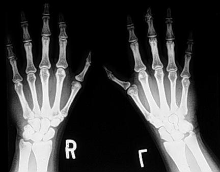 Задне-передняя рентгенограмма рук пациента с синдромом Холт-Орама. Дистальная фаланга левого большого пальца гипопластична. Кистевые кости обеих рук являются ненормальными, но аномалии на левой стороне больше, чем на правой стороне. Аномалии лучевых лучей левой верхней конечности часто больше, чем на правой стороне.