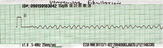 Ритм-полоска, показывающая фибрилляцию желудочков.