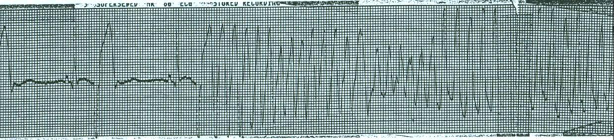 На этой ЭКГ экстрасистолы встречаются вблизи пика волны T предыдущего удара. Этисокращения предрасполагают пациента к желудочковой тахикардии или фибрилляции. Эта картина R-на-T часто встречается у пациентов с острым инфарктом миокарда или длительными интервалами Q-T.