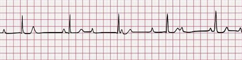 Эта полоса ритма ЭКГ показывает атриовентрикулярную блокаду третьей степени (полную блокаду сердца). Частота предсердий быстрее, чем частота желудочков, и никакой связи между предсердной и желудочковой активностью не существует.