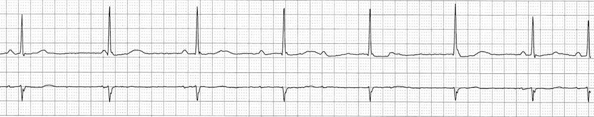 Значительное замедление синусового узла позволяет активировать вспомогательный кардиостимулятор (атриовентрикулярный узел), приводя к диссоциации.