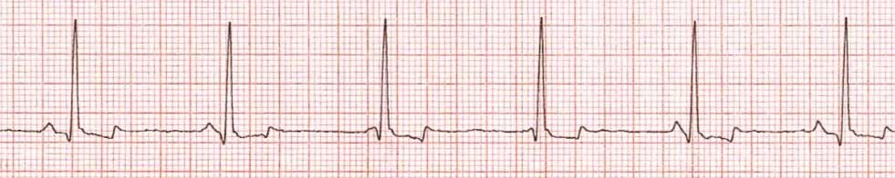 Изоритмическая АВ-диссоциация. Имеется АВ-диссоциация с независимой предсердной и желудочковой проводимостью с аналогичными показателями.