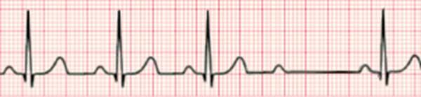 Атриовентрикулярная блокада Мобитц II типа. Обратите внимание на фиксированный интервал PR, но после третьего ритма предсердный импульс не проходит к желудочку.