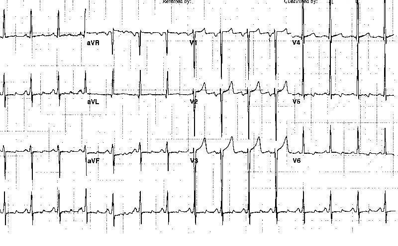 Электрокардиограмма 47-летнего мужчины с давней историей неконтролируемой гипертонии, показывающая увеличение левого предсердия и гипертрофию левого желудочка.