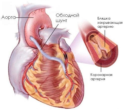 Что такое кардиосклероз сердца, симптомы, причины, диагностика, лечение