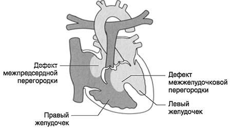 Дефект предсердно-желудочковой перегородки
