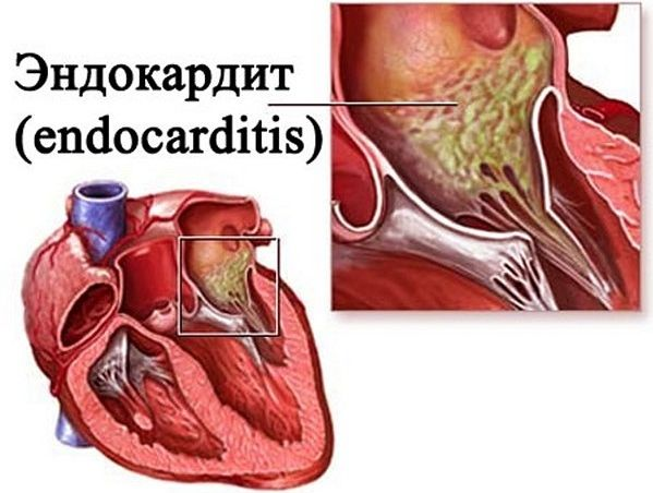 Инфекционный эндокардит: понятие, формы, признаки, диагностика, лечение