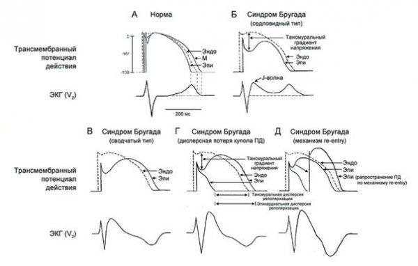 Три типа поднятия сегмента ST при синдроме Бругада, как показано в грудных отведениях на ЭКГ у одного и того же больного в разное время. J-точки (стрелка), сегмент ST по типу «свод» и инвертированная T-волна в отведениях V1 и V2. Средний фрагмент иллюстрирует образец 2 типа с сегментом ST по «седловидному» типу, увеличенным на> 1 мм. На правом фрагменте узора 3 типа, при котором сегмент ST повышен, 1 мм., Модель ЭКГ типа 1 является диагностическим признаком синдрома Бругада.