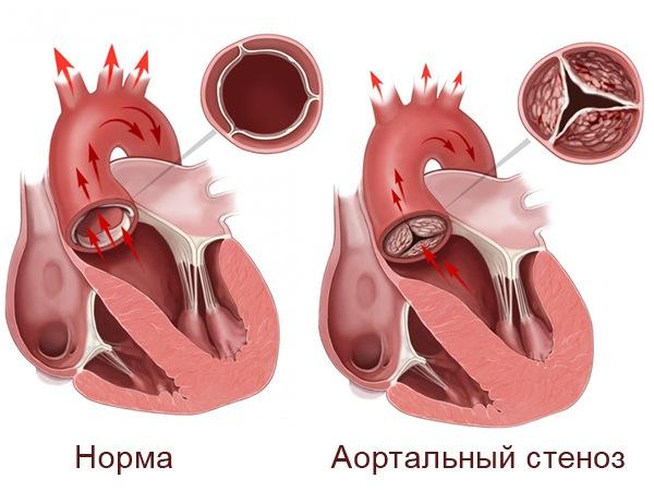 Аортальный стеноз сердца