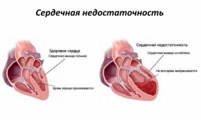 Сердечная недостаточность: понятие, формы