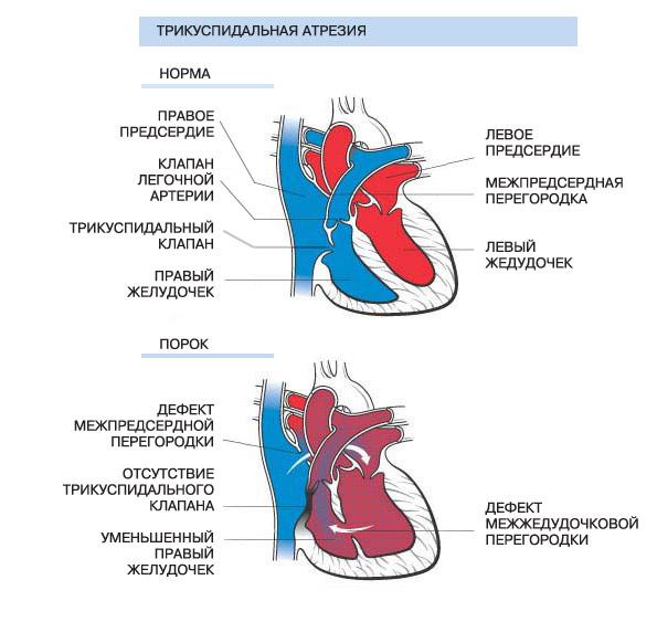 Трикуспидальная атрезия