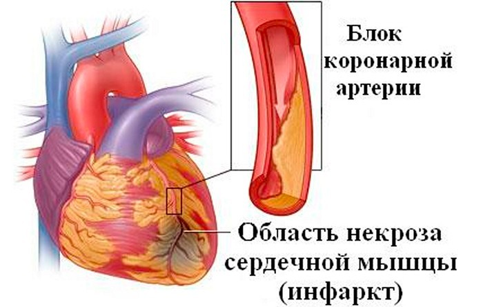 Инфаркт миокарда: что такое, симптомы, диагностика, лечение