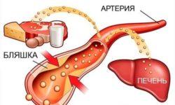 Что такое холестерин? Норма холестерина