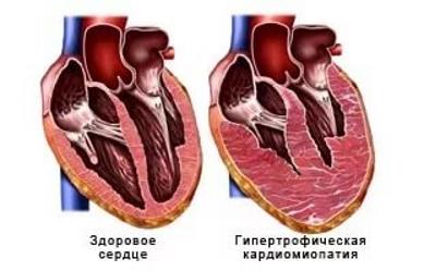 Гипертрофическая кардиомиопатия: понятие, виды, причины